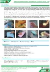 Nonwoven Fresh Wipes (Read pdf)